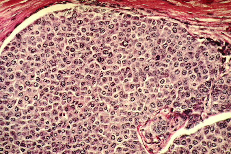 Breast cancer cells. Researchers hope the new discovery could be used in the fight against cancer (phot. Dr. Cecil Fox)